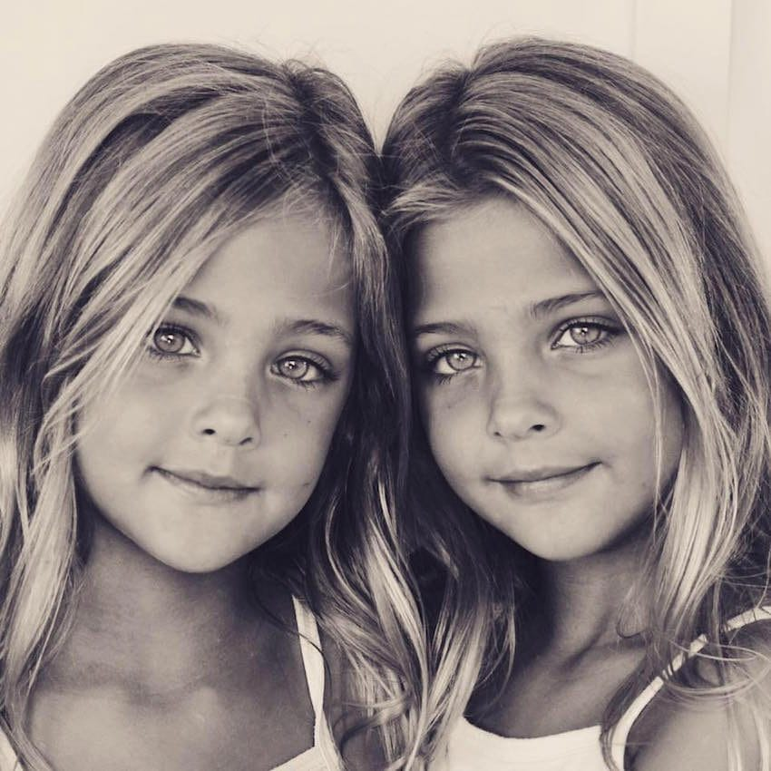 These Identical Sisters Have Grown Up To Become The 'Most ...